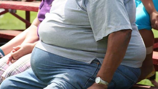 fto-gene-in-obesity