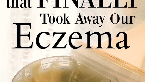 eczema-cream-that-works