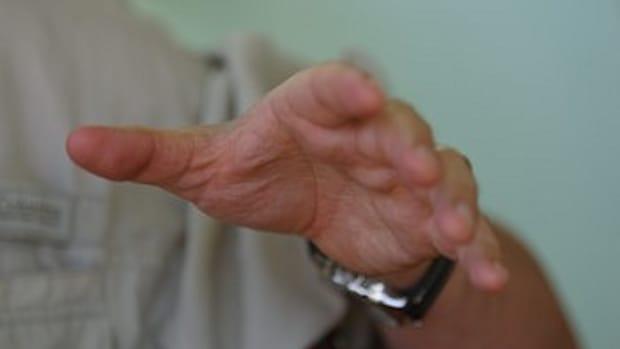 when-rheumatoid-arthritis-struck-with-a-vengeance