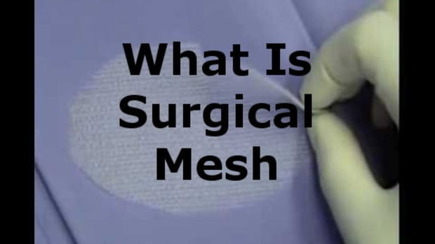what-is-surgical-mesh