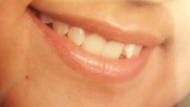 should-i-get-invisible-aligners