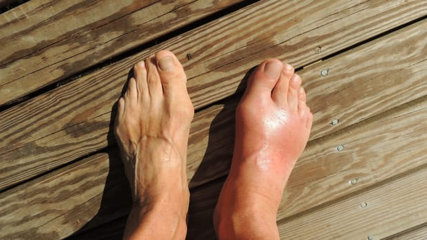 gout-with-a-capital-c