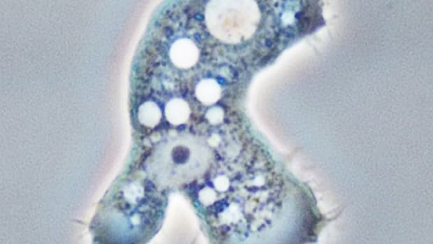 acanthamoeba-facts-and-keratitis-in-the-cornea