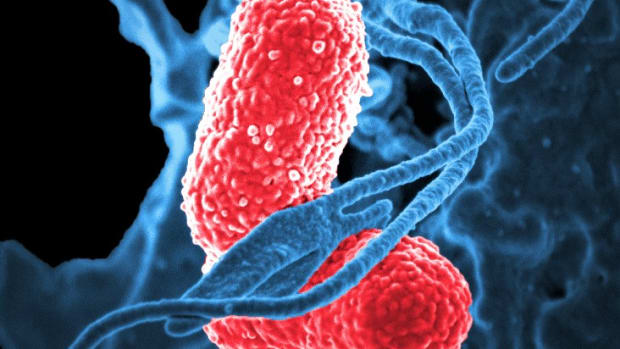 facts-about-klebsiella-pneumoniae-in-the-gastrointestinal-tract