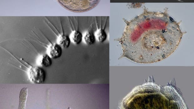 4-main-groups-of-protozoa