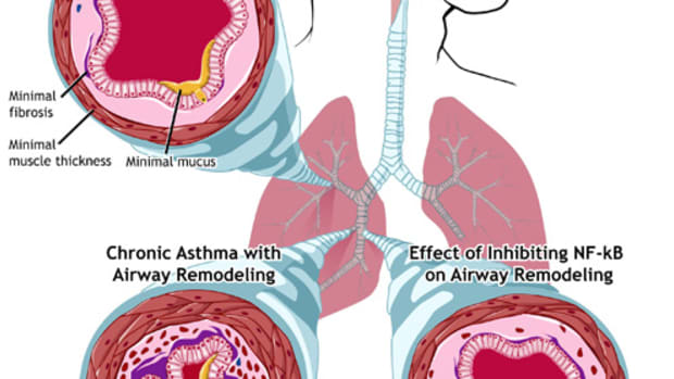 how-do-children-get-asthma