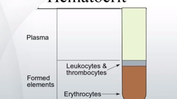hematocrit-levels-low-high-normal-range
