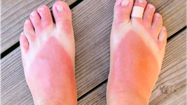 25-easy-ways-to-get-rid-of-sunburn-fast-at-home-naturally