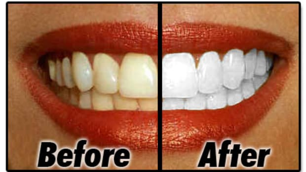 whiter-teeth-and-teeth-whitening-reviews-and-frequently-asked-questions