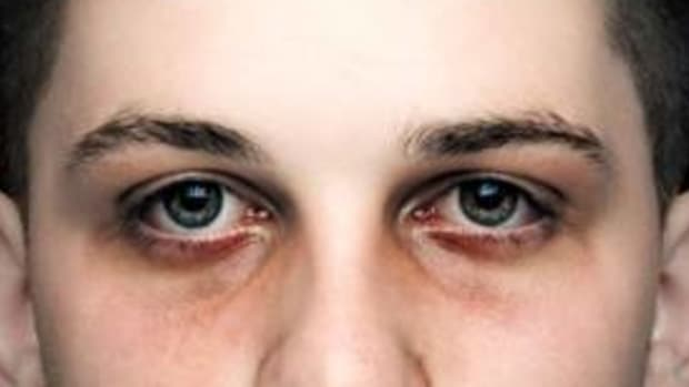 baggy-and-saggy-under-eyes-quick-fixes