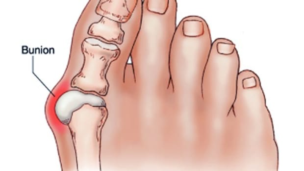 bunion-surgery-photos-cost-complications-recovery-time