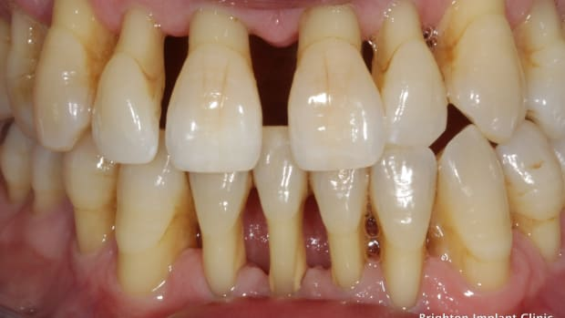 curing-tooth-decay-and-periodontal-disease