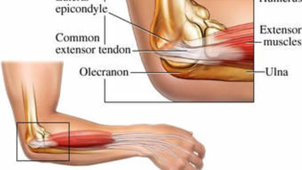lateral-epicondylitis-elbow-pain-diagnosis-treatment-and-outcomes
