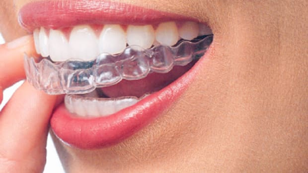 7-things-you-should-know-before-getting-clear-braces