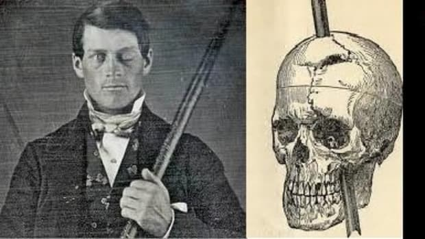 phineas-gage-personality-is-all-in-your-head