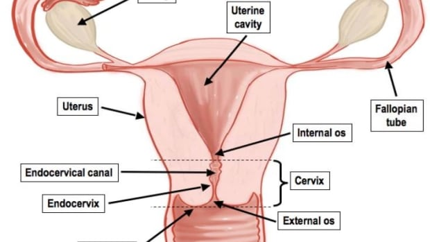 gynecology-p