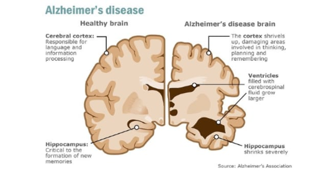 can-an-antibody-help-anybody-with-alzheimers