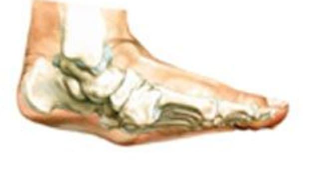 charcot-foot-diabetes