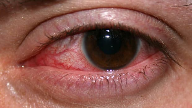 inflamed_eyes