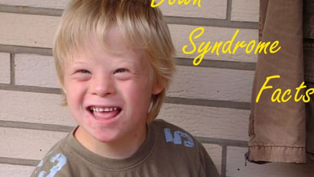 how-to-know-if-your-bbay-has-down-syndrome