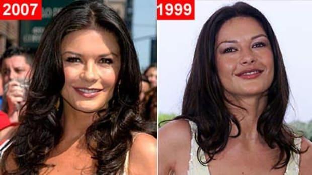 catherine-zeta-jones-plastic-surgery-before-after-look