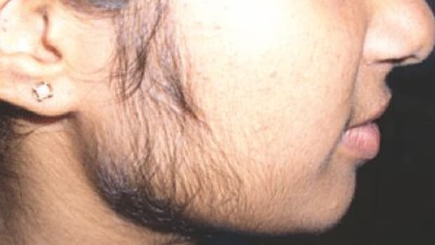 womens-facial-hair-removal