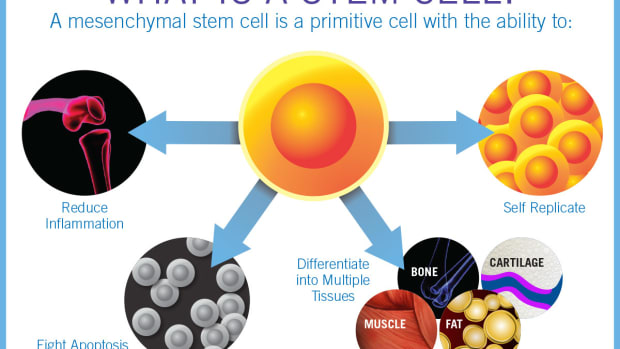 stem-cell-therapy-versus-photobiomodulation