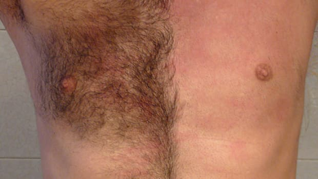 manscaping-hair-removal-for-men