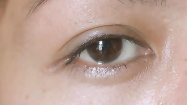 puffy-eyelids