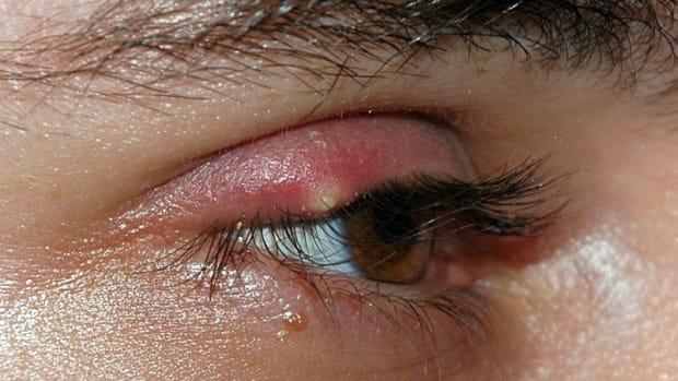 ingrown-eyelash-trichiasis