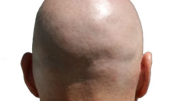 7-reasons-being-a-bald-guy-rocks