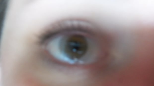 eye-exercises-can-vision-be-improved-naturally