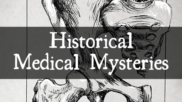four-weird-medical-mysteries