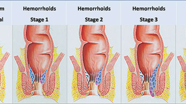 how-i-cured-my-severe-hemorrhoids-in-2-weeks