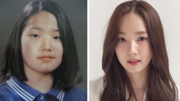 famous-korean-celebrities-who-undergone-plastic-surgery