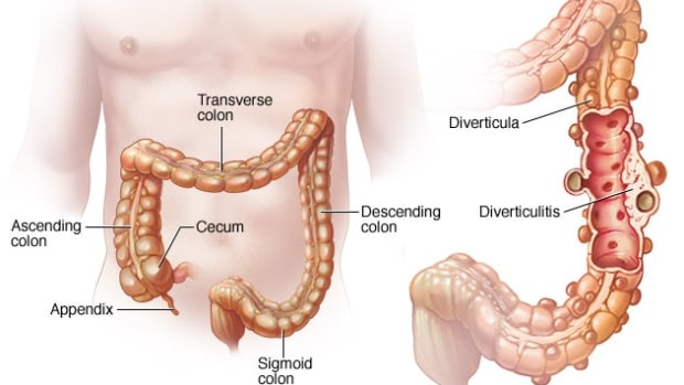 facts-diverticulitis-diverticulosis