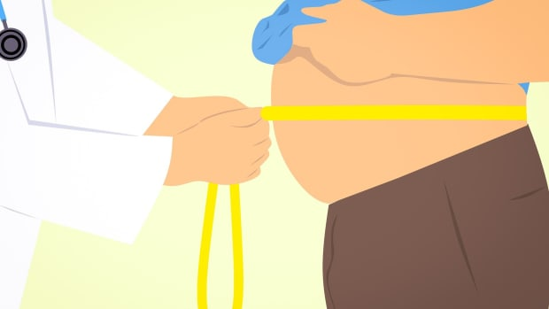 importance-of-getting-insurance-before-a-weight-loss-surgery