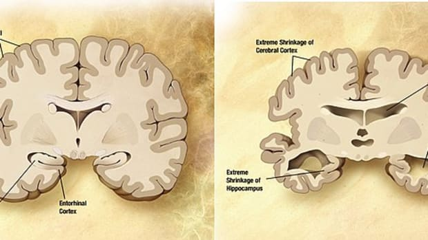alzheimer-disease-and-research