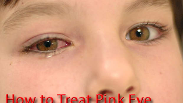 how-to-get-rid-of-pink-eye-treatments-and-pink-eye-home-remedy