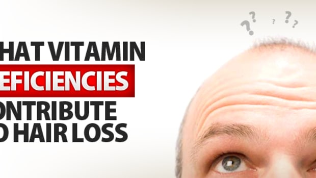 16-vitamin-deficiencies-that-lead-to-hair-loss
