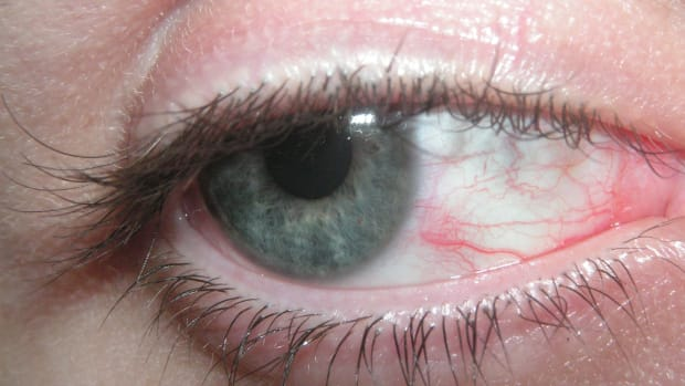 red-eyes-itchy-eyes-sore-eyes-causes-symptoms-and-solutions