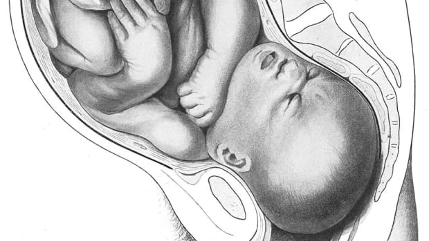 normal position baby in utero