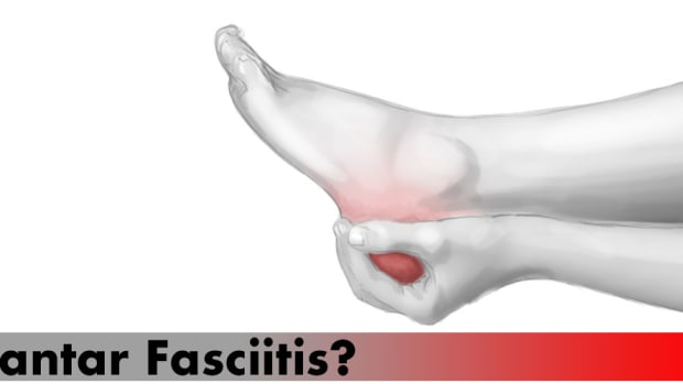 best-shoes-plantar-fasciitis
