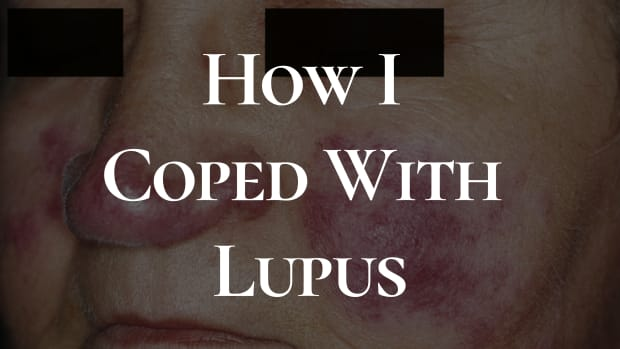 lupus-changes-you-can-make