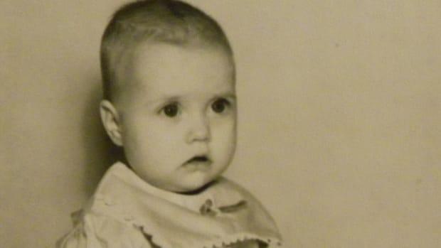 poliomyelitis-and-polio-deformities-i-am-a-polio-survivor