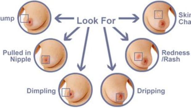 breastcancereverywomenshouldknow