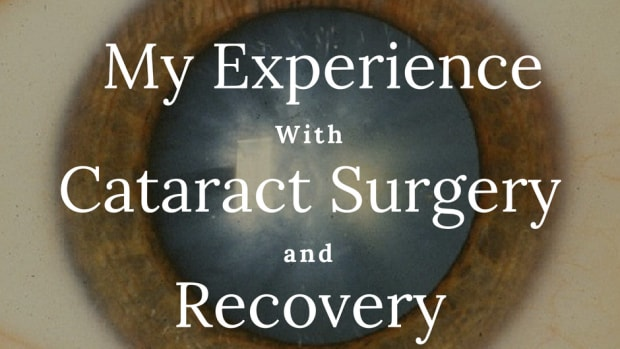 cataract-surgery-operation-and-recovery