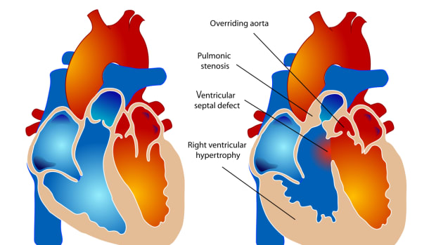 tetralogy-of-fallot