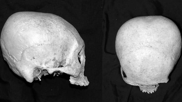 the-precolonial-visayan-practice-of-skull-deformation