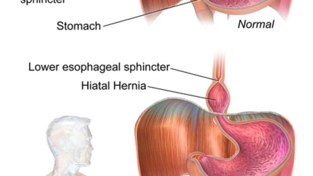hiatal-hernia-facts